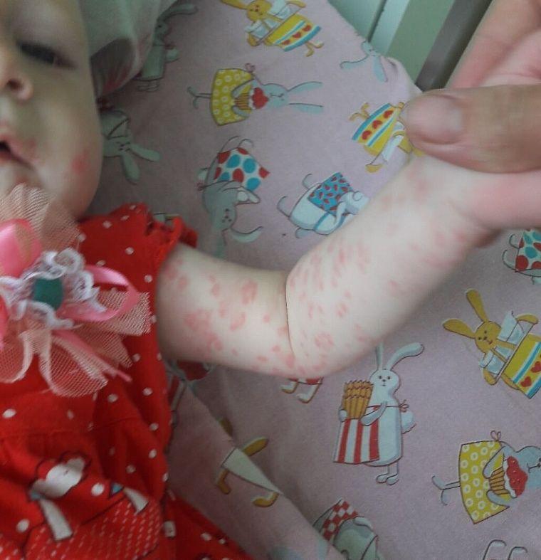 Как мы справились с дерматитом